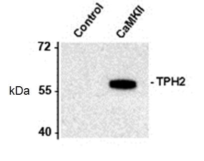 Tryptophan Hydroxylase 2 (pSer19) Antibody gallery image 1