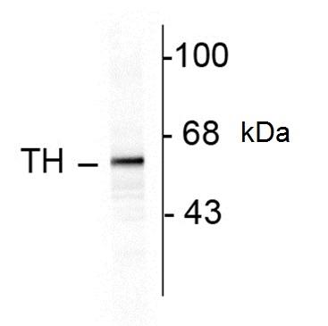 Tyrosine Hydroxylase Antibody gallery image 1
