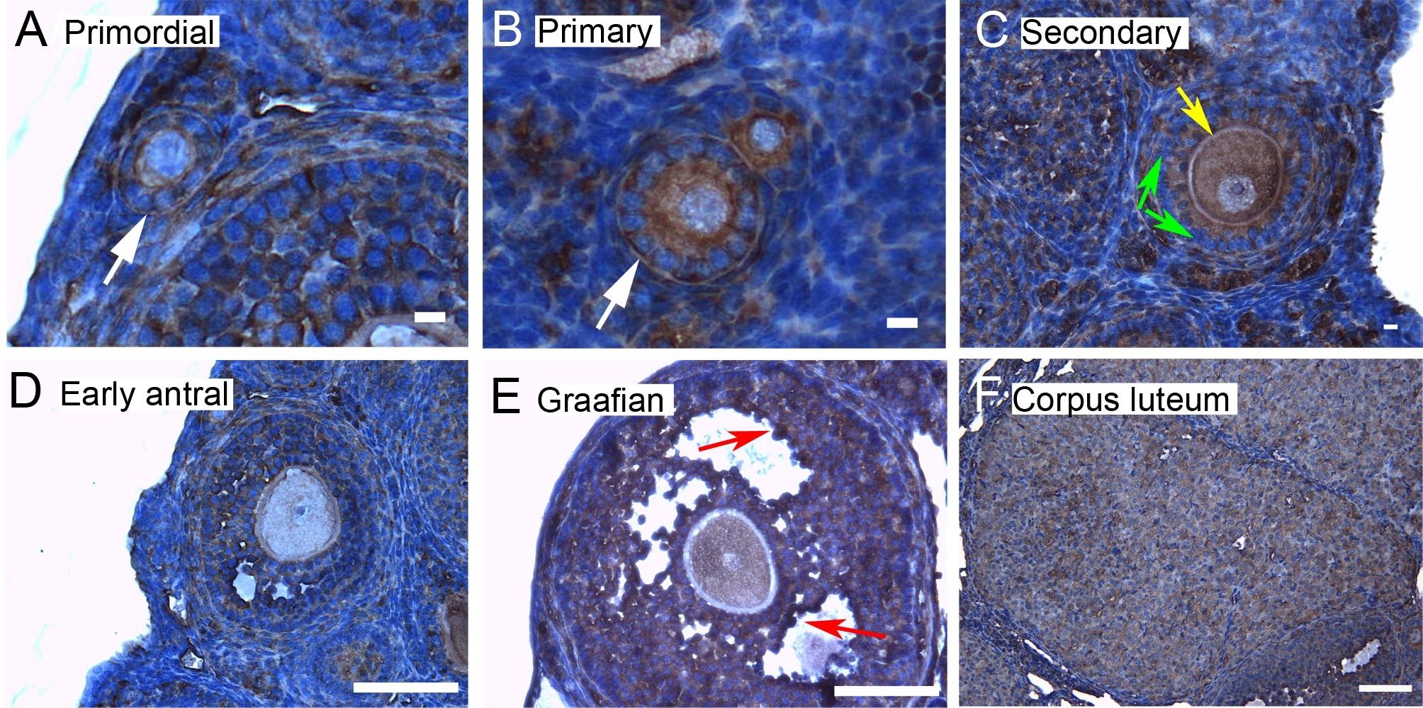 14 3 3 epsilon antibody polyclonal antibody abd serotec for Mural granulosa cells