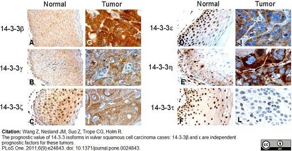 14-3-3 eta Antibody gallery image 7