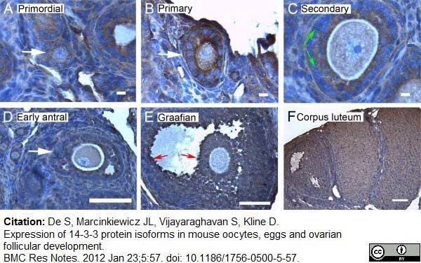 14-3-3 eta Antibody gallery image 4