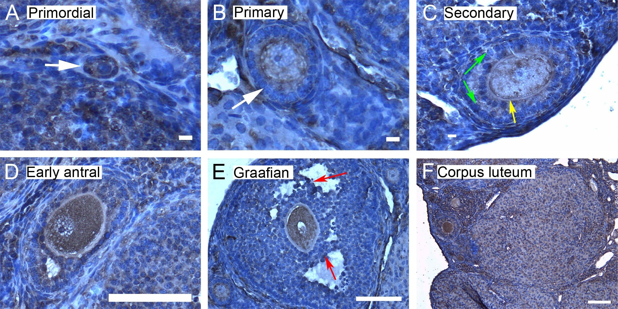 14 3 3 isoform panel kits abd serotec for Mural granulosa cells