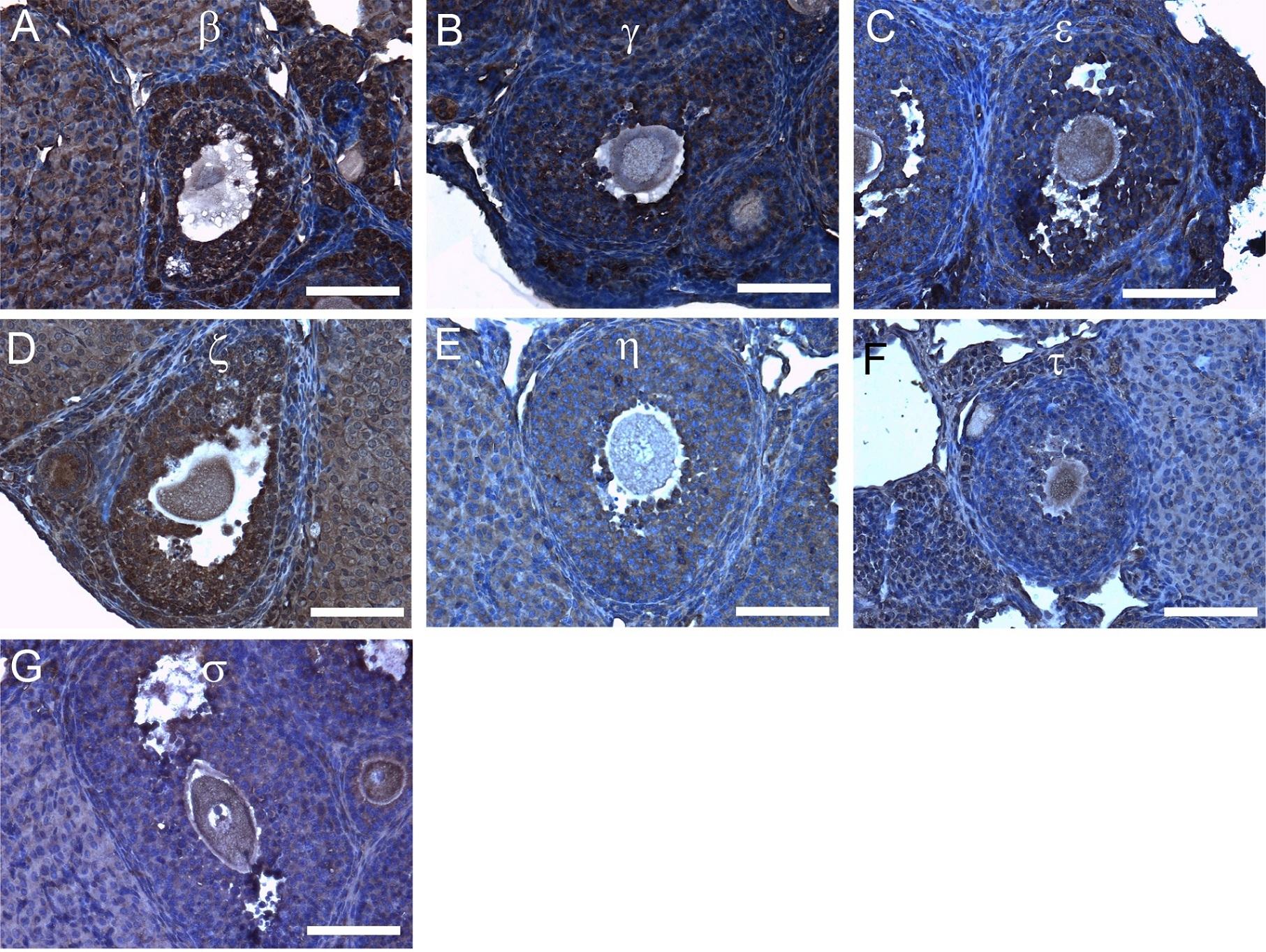 14-3-3 tau/theta Antibody gallery image 4
