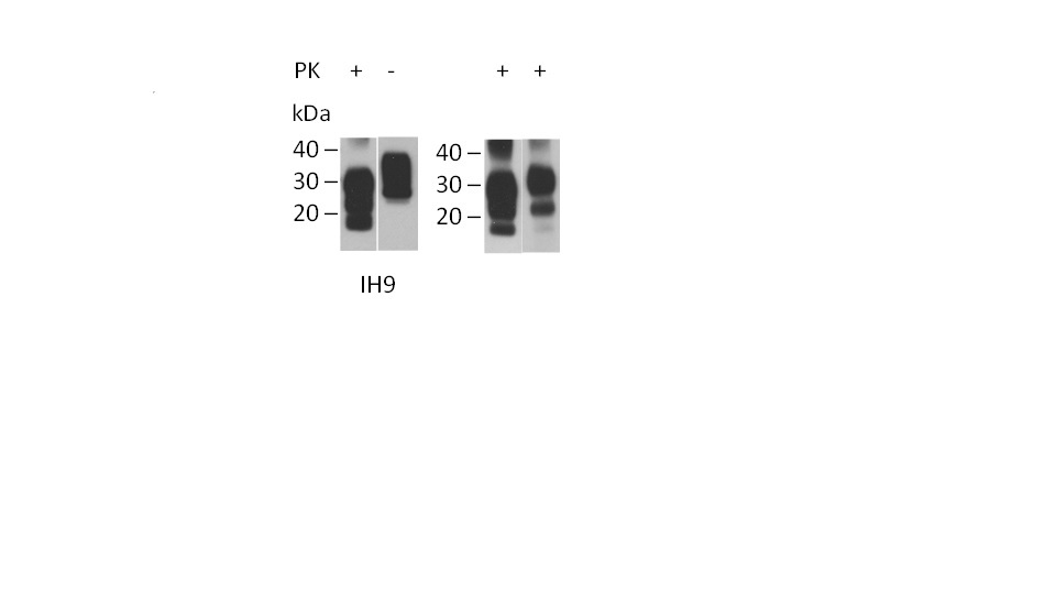 CD230 Antibody   ROS-1H9 gallery image 4