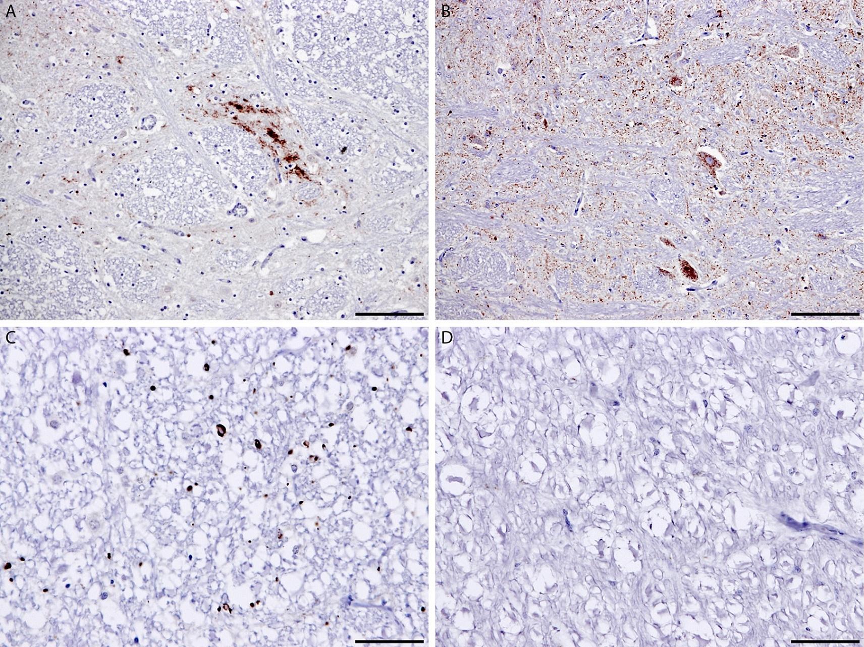 CD230 (Prpsc) Antibody | 2G11 gallery image 1