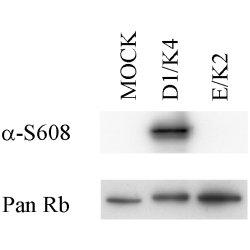 Retinoblastoma Gene Protein (pSer608) Antibody | 51B7 gallery image 1