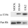 Retinoblastoma Gene Protein (pThr356) Antibody | 7F10 thumbnail image 1