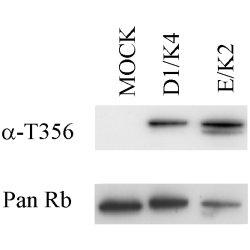 Retinoblastoma Gene Protein (pThr356) Antibody | 7F10 gallery image 1