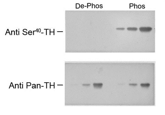 Tyrosine Hydroxylase (pSer40) Antibody gallery image 1