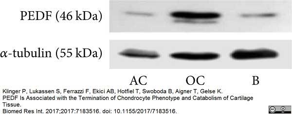 Tubulin Alpha Antibody | YL1/2 gallery image 10