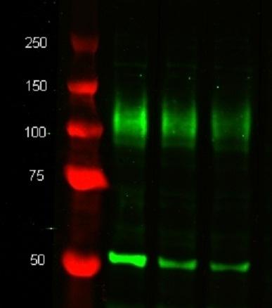 Tubulin Alpha Antibody | YOL1/34 gallery image 2