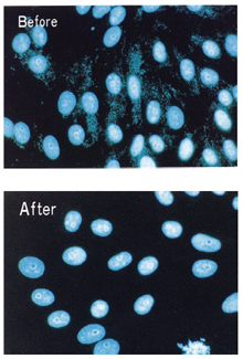 Mycoplasma Removal Agent in the culture media of mycoplasma-infected cells after 1 week